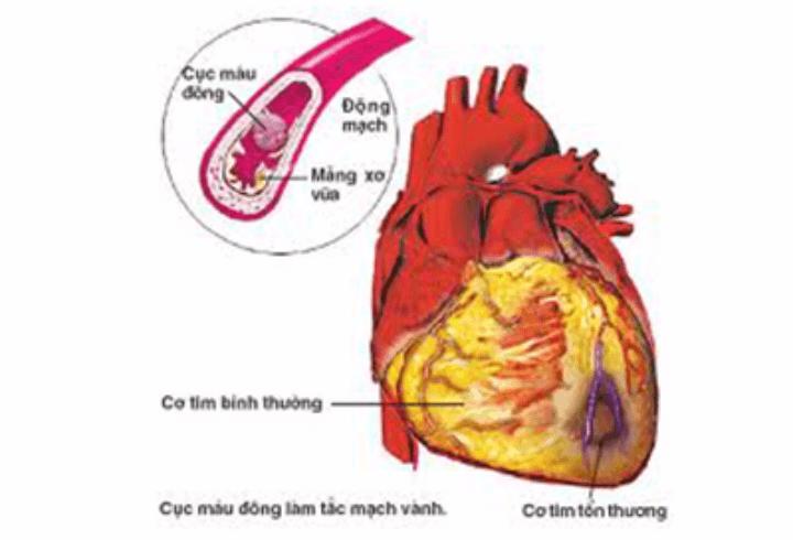 Biến chứng tim mạch trên bệnh nhân đái tháo đường